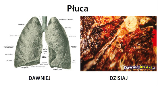 Płuca –