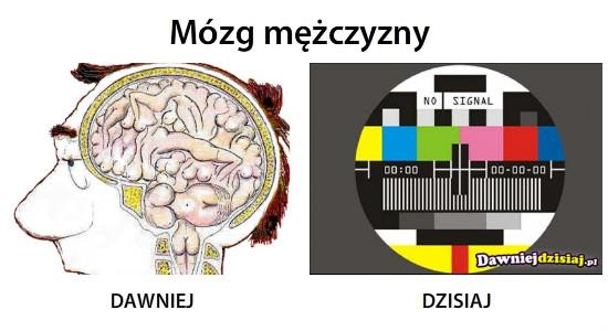 Mózg mężczyzny –